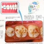 酸蝕歯の原因は?症状と予防方法